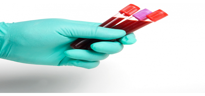 un test del sangue per prevedere l'alzheimer